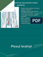 paraliziile periferice (2)