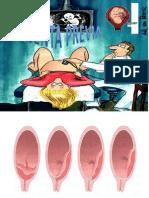Placenta Previa PART 1