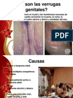 verrugas y vulvovaginitis.ppt