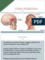 Hematoma Subdural Presentasi Kasus