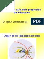 CVC como guía de la progresión del Glaucoma