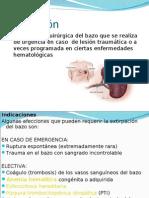 esplenectomia