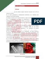 6.5. Cirugia Paliativa de Las Paralisis