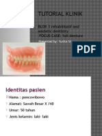 Tk Full Denture Nduti