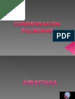 CONDENSACION PULMONAR