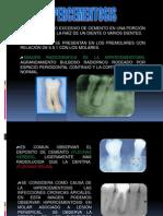 Hipercementosis y Anquilosis