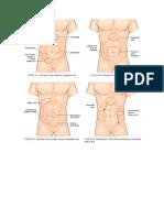 Apendicitis Aguda Prando.doc