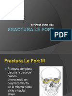 Fractura Le Fort III
