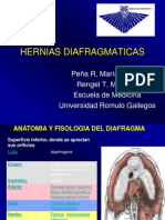 Hernia Dia Frag Matic As