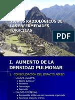 SIGNOS RADIOLÓGICOS DE LAS ENFERMEDADES TORÁCICAS