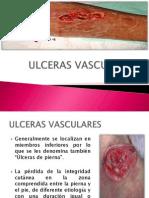 ULCERAS VASCULARES
