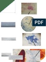 Celulas Examen de Citologia Exfoliativa