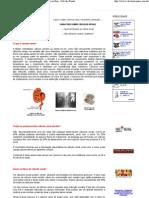 Cálculo Renal - Tudo sobre cálculos renais - Pedra no Rim - Calculo Renal