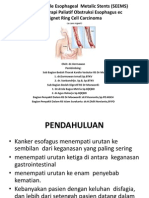 Self Expandable Esophageal Metalic Stents (SEEMS) Ppt