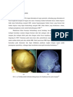 referat Growing Skull Fracture.docx