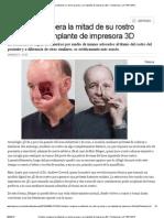 Hombre Recupera La Mitad de Su Rostro Gracias a Un Implante de Impresora 3D _ Tendencias _ LA TERCERA