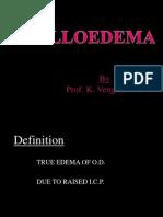 Copy of 9 Papilloedema New
