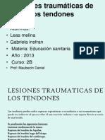Lesiones Traumaticas de Los Tendones n2