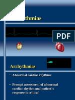 Chapter 35Arrhythmias