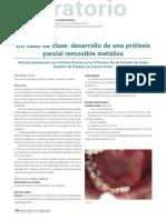 211 LABORATORIO Protesis Removible Metalica