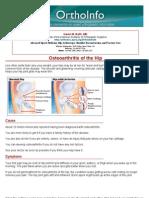 osteoarthritis of the hip -orthoinfo - aaos