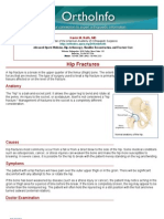 hip fractures-orthoinfo - aaos