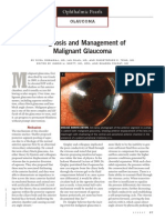 Diagnosis and Management of Malignant Glaucoma