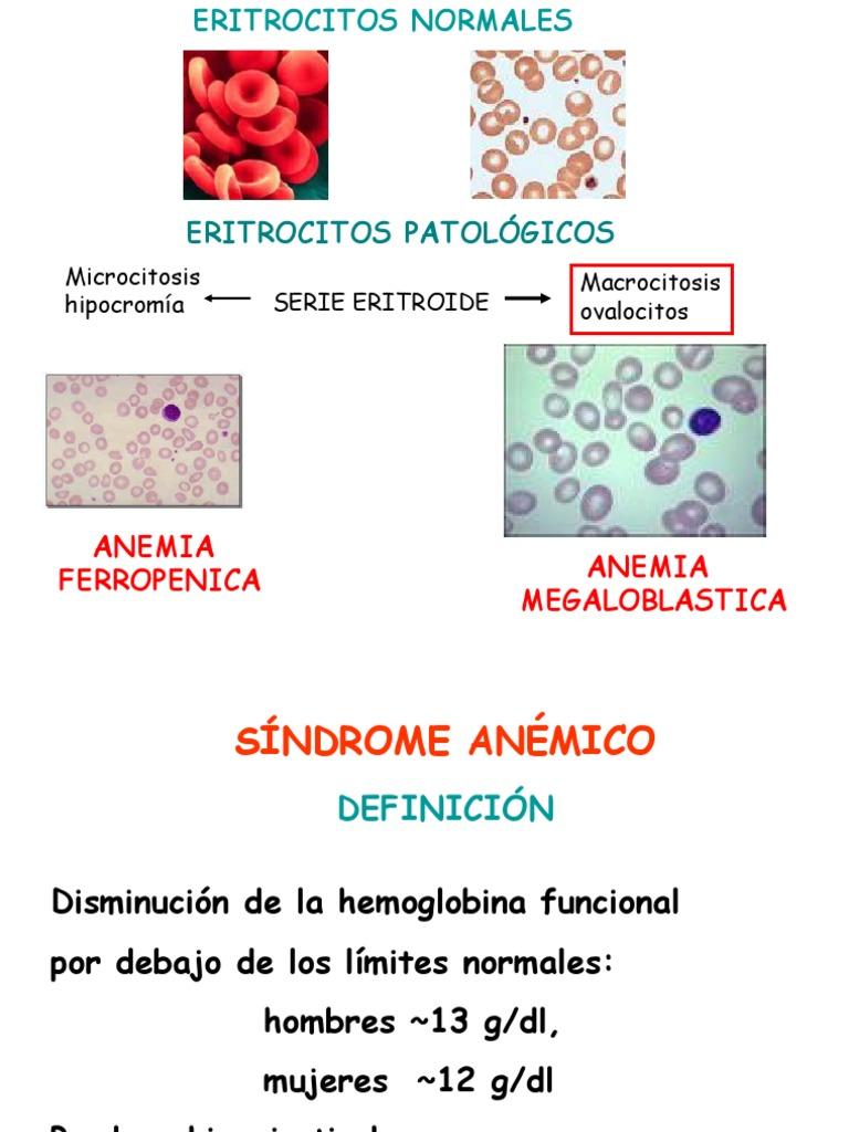 anemie megaloblastica)