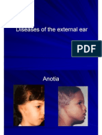 Hospi Atlas Diseases External Ear Canal