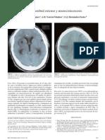 Infarto Cerebral Extenso y Neurocisticercosis