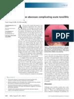 2. Peritonsillar abses