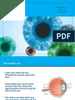 Primary Glaucoma