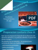 preparacionescavitariasyrestauracionesclaseiiiuasdreatauradorai2010-1-100606140703-phpapp02
