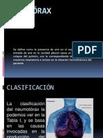 ¿qué son las fibrocalcificaciones de la próstata reaction