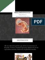 Mielomeningocle