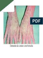 Dermatite de Contato Com Borracha