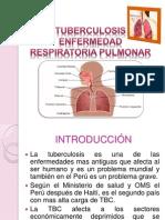 TUBERCULOSIS ENFERMEDAD RESPIRATORIA