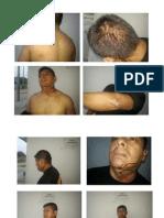 Fotos Lesiones