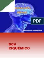 DCV ISQUÉMICO.ppt