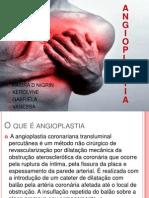 Angioplastia e Tranplante