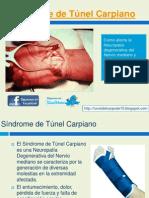 Sindrome de Tunel Carpiano Grados
