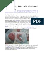 Iraqi Birth Defects Worse Than Hiroshima