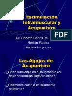 Estimulación Intramuscular y Acupuntura