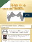 Epifiolisis de Cabeza Femoral Presentacion