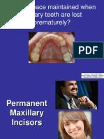 12 Mx Permanent Incisors 2011(1)