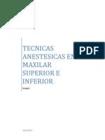 Tecnica de Anestecia