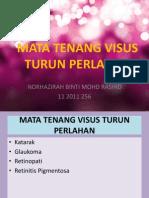 MTVTP