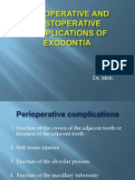 Complication of Exodontia