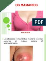 ABSCESOS MAMARIOS