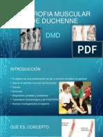 Distrofia muscular de Duchenne.pptx